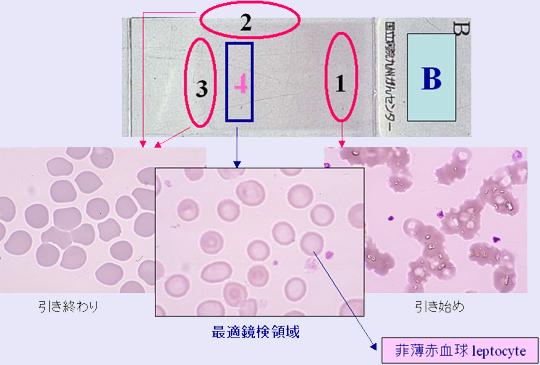 ネットで形態」 血液形態自習塾 ...