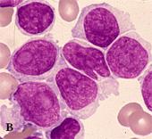 「ネットで形態」 血液形態自習塾 第3部造血器腫瘍の診断〜ソフトに関する戦略〜